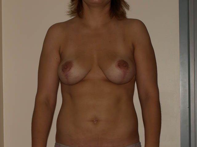 Patient after breast correction and liposuction.