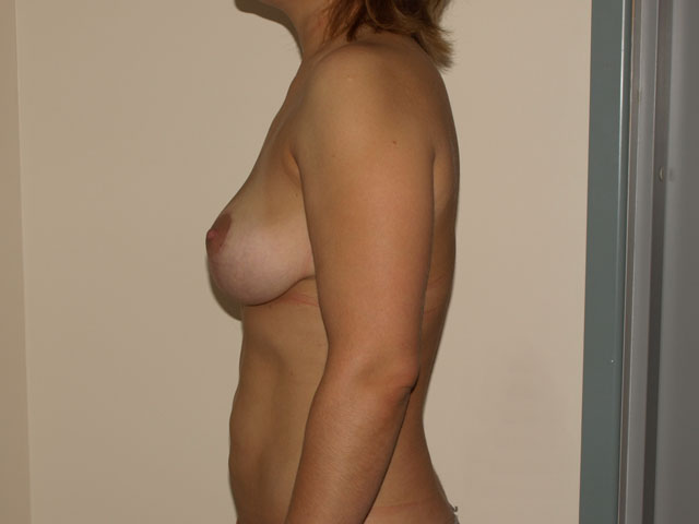 Patient after breast correction and liposuction, from the side.