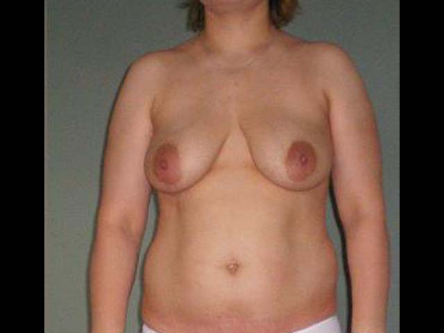 Patient before breast correction and liposuction.