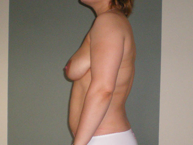 Patient before breast correction and liposuction, from the side.
