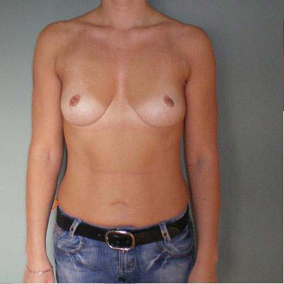 Breast correction, one year after plastic surgery.