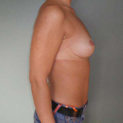 Breast correction, patient one year after plastic surgery.