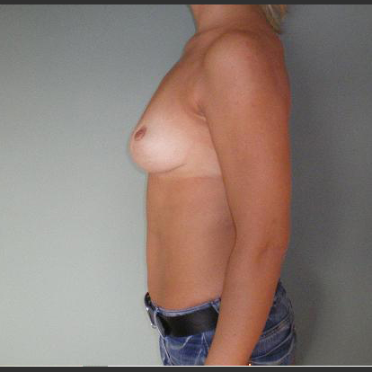 Breast correction, one year after surgery.