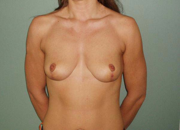 Breast correction, one month after plastic surgery.