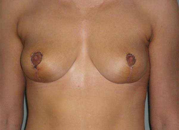 Breast correction, one week after plastic surgery.