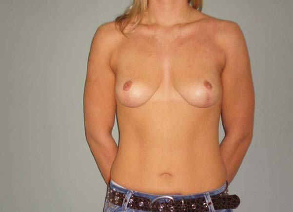 Breast correction, six months after plastic surgery.