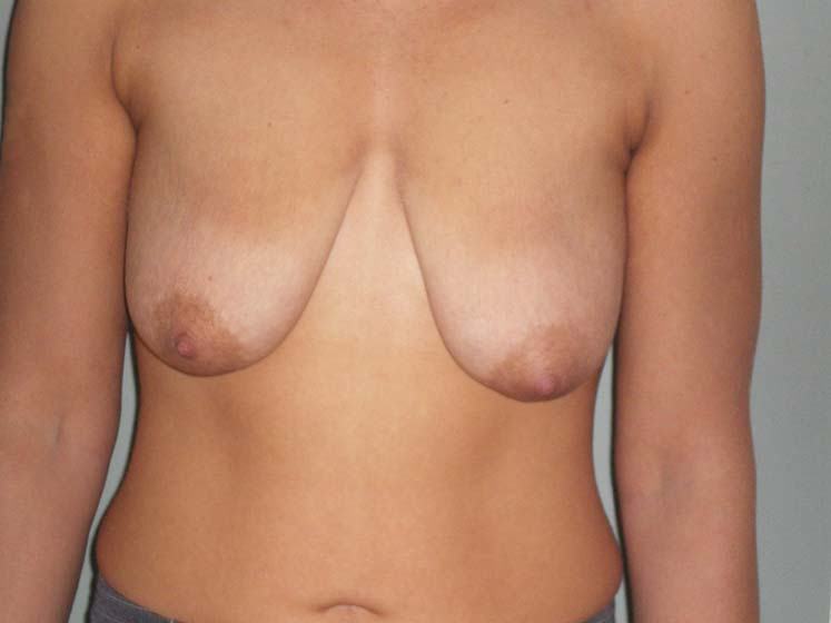 Breast correction, patient before surgery.