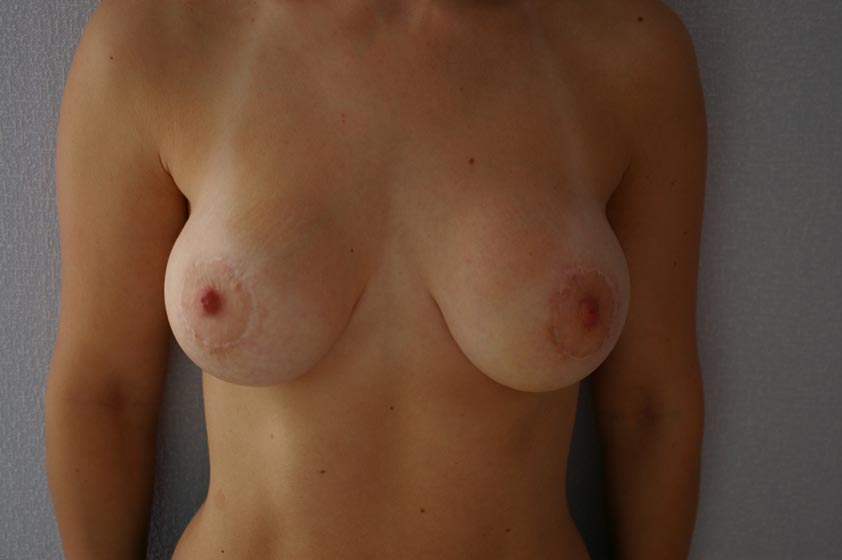 Breast correction with implants - after plastic surgery.