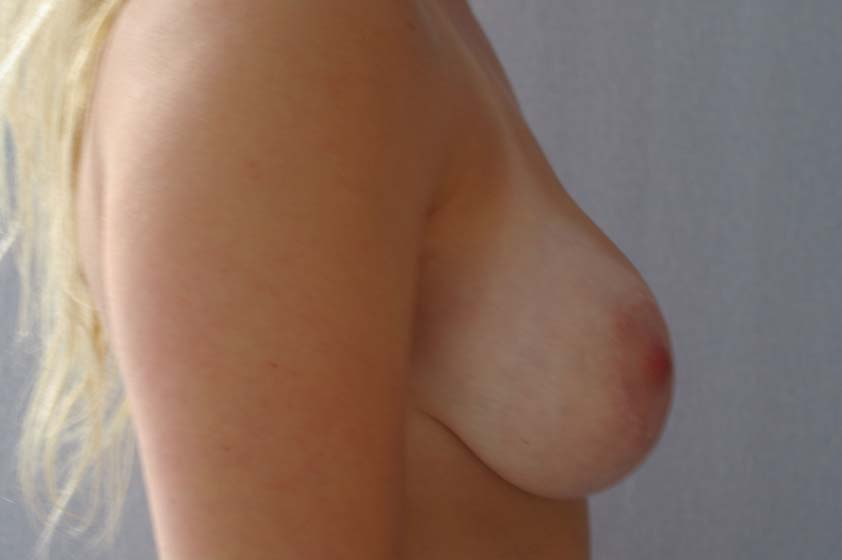 Breast correction with implants - after plastic surgery, side view.