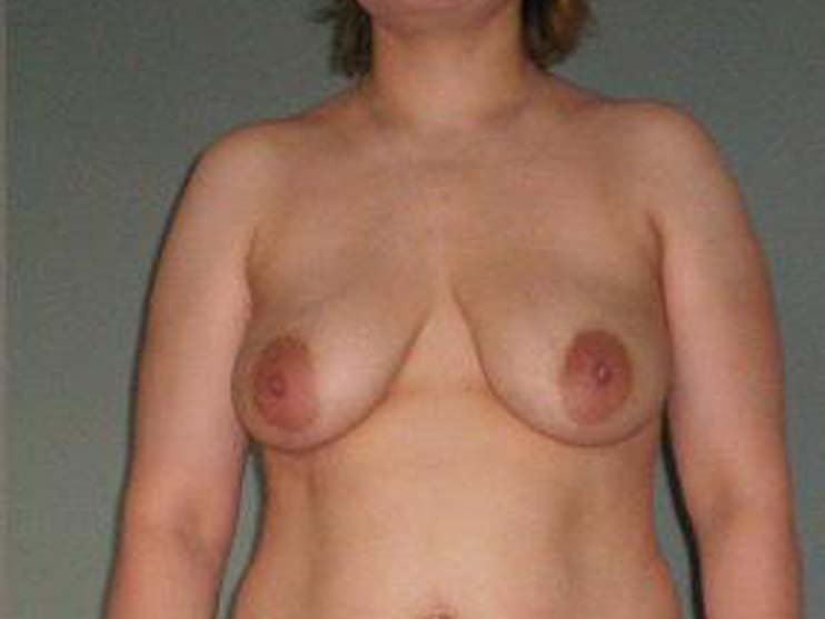Breast correction, breasts before plastic surgery.