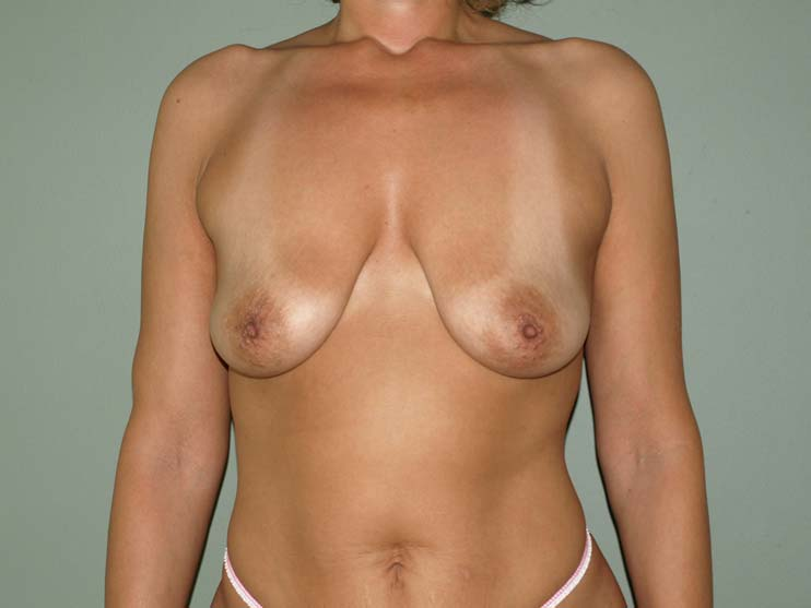 Breast correction. image of patient before plastic surgery.