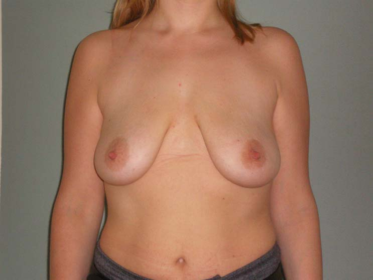 Breast correction. Image of patient before surgery.
