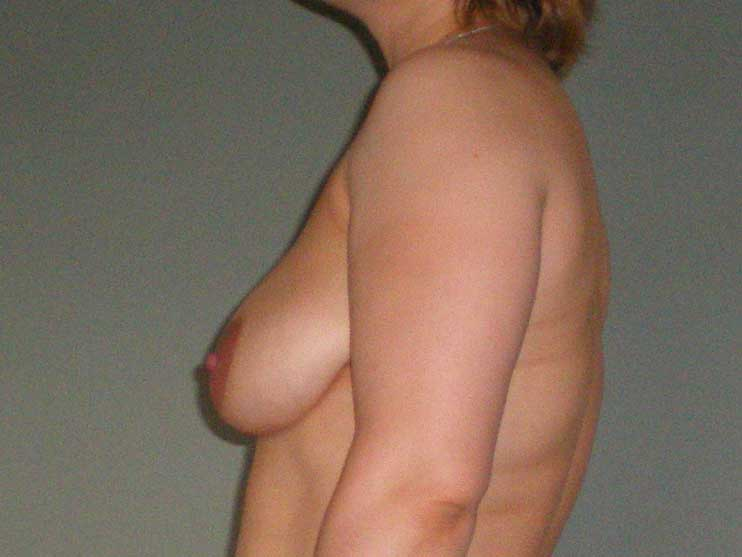Breast correction, breasts before plastic surgery, side view.