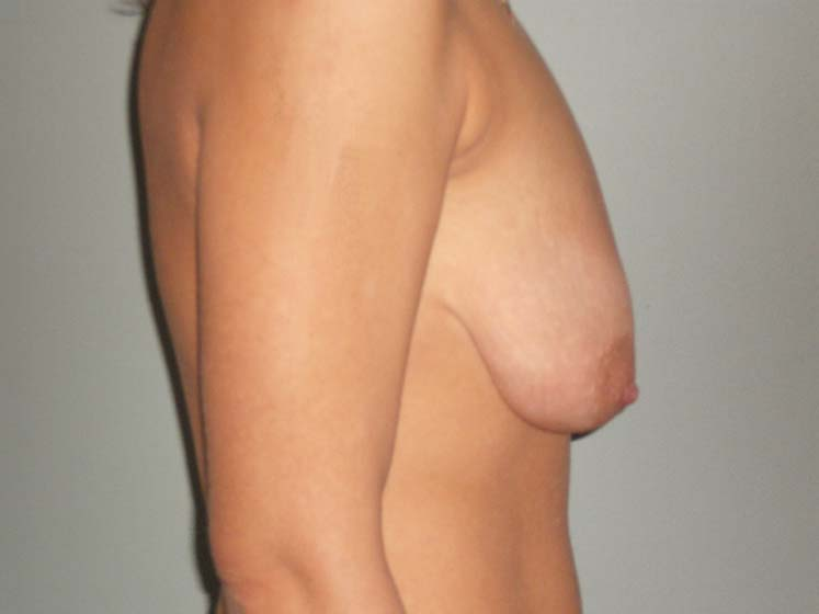 Breast correction, patient before breast correction, side view.