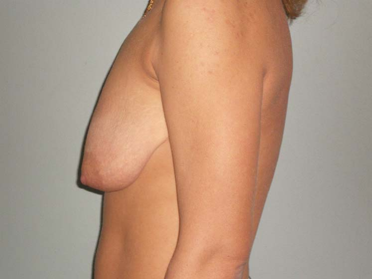 Breast correction, patient before surgery, from side.