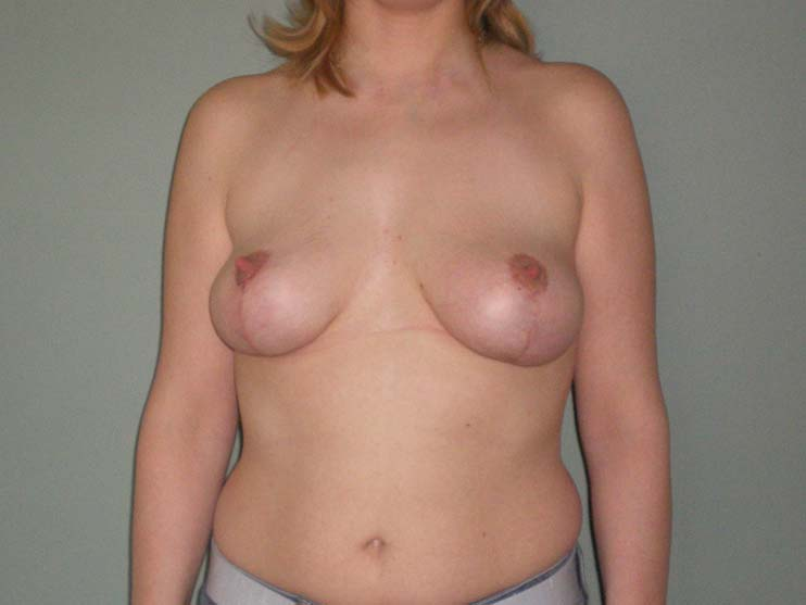 Breast correction. Image of patient after surgery.