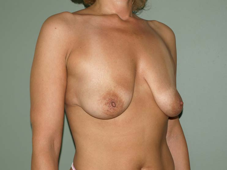 Breast correction. Image of patient before plastic surgery, side view.