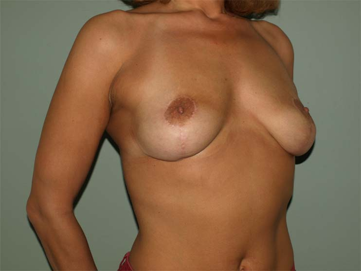 Breast correction. Image of patient after plastic surgery, side view.