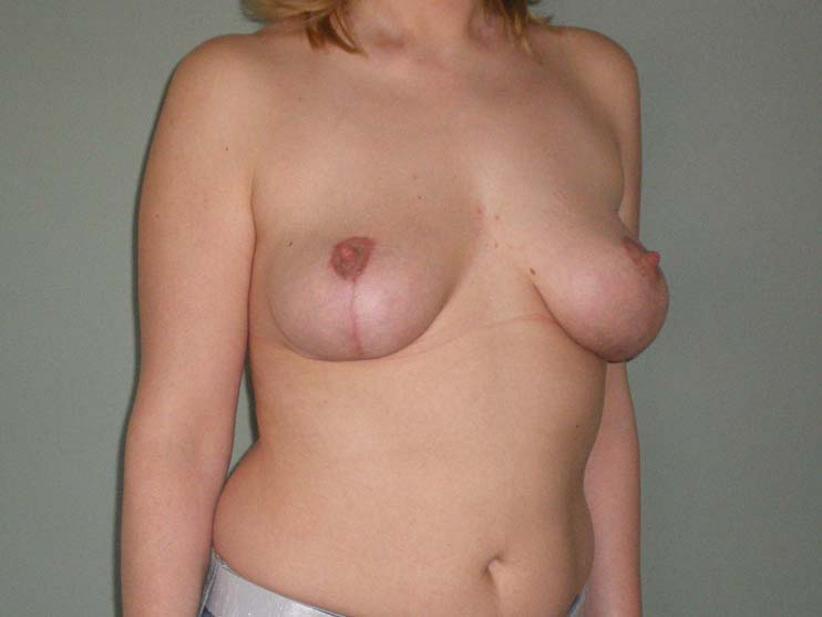 Breast correction. Image of patient after plastic surgery, from side.