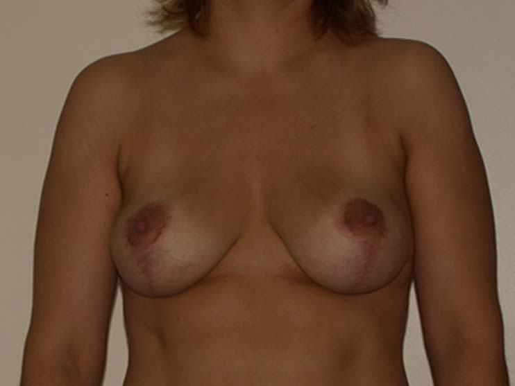 Breast correction, breasts after plastic surgery.