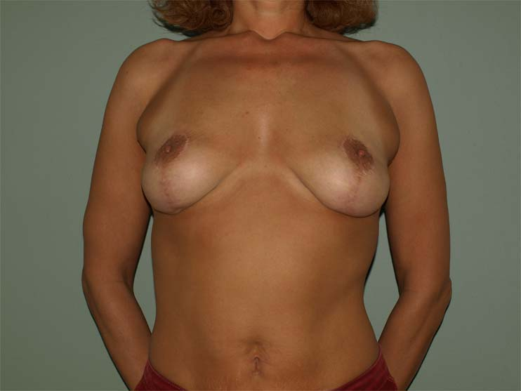 Breast correction, image of patient after plastic surgery.