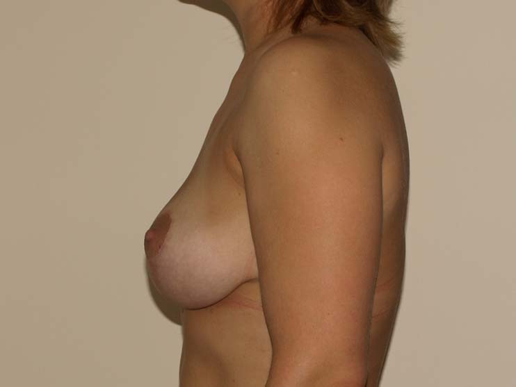 Breast correction, breasts after plastic surgery, side view.