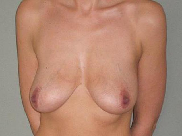 Plastic surgery - patient before breast correction.