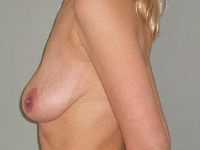 Plastic surgery - patient before breast correction, side view.