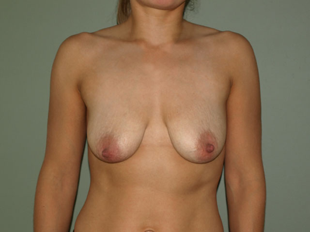 Plastic surgery - breasts before breast correction.