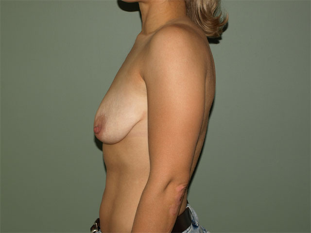 e breast correction, side view.