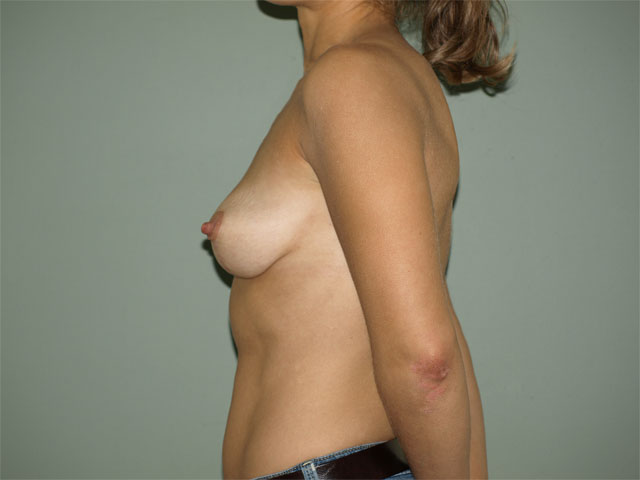 Plastic surgery - breasts after breast correction, side view.