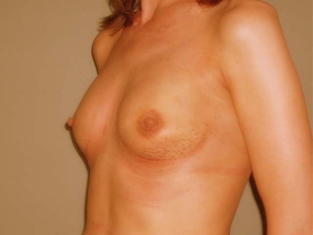 Breast enlargement - patient after Brava 3D method, view from the side.