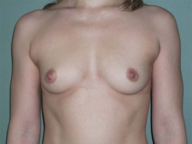 Breast enlargement - patient before Brava 3D method, front view.