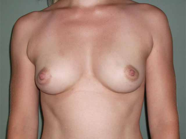 Breast enlargement - patient after Brava 3D method, front view.