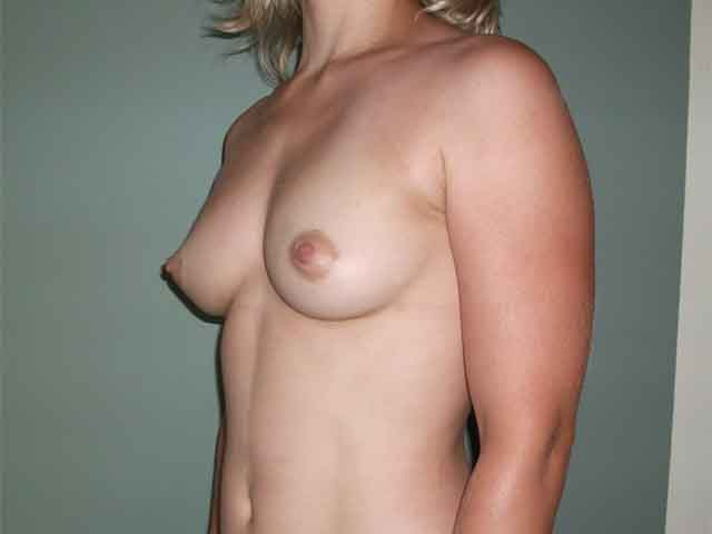 Breast enlargement - patient after the Brava 3D method, side view.
