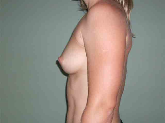 Breast enlargement - patient after Brava 3D method, side view.