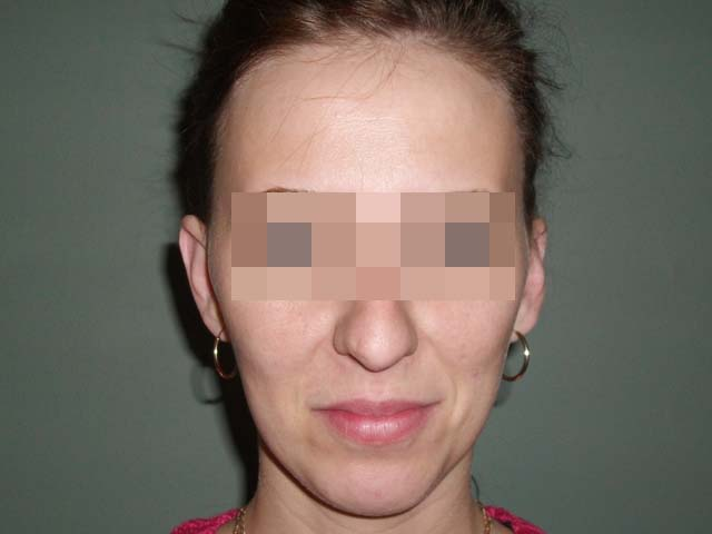 Ear correction, patient six months after plastic surgery.