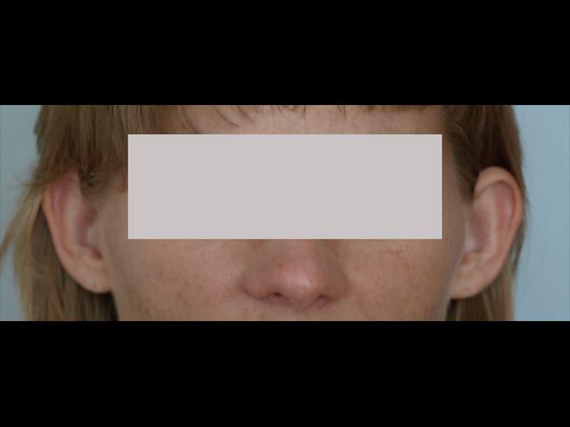 Ear correction - patient before plastic surgery.
