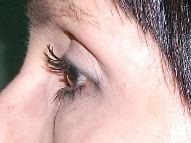 Patient after eyelid surgery