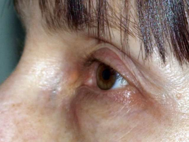 Patient before eyelid surgery.