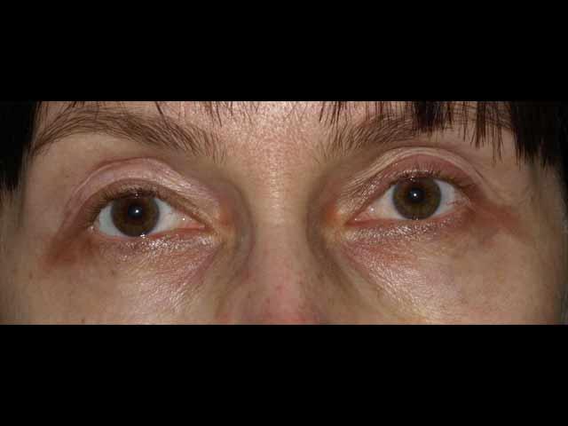 Before eyelid surgery.