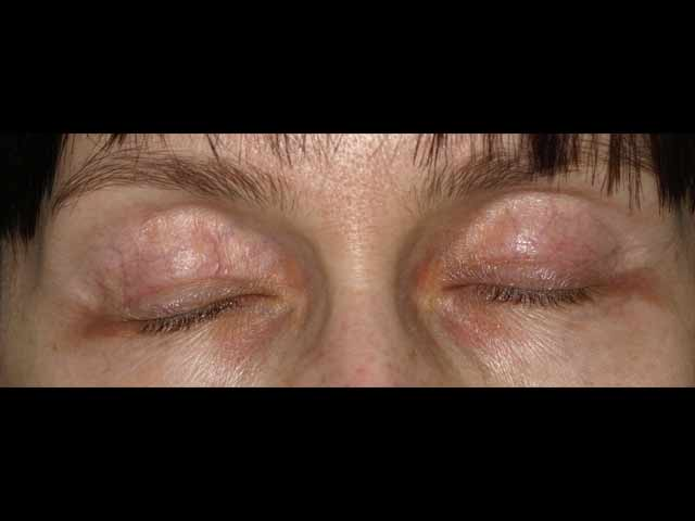 Before eyelid correction.