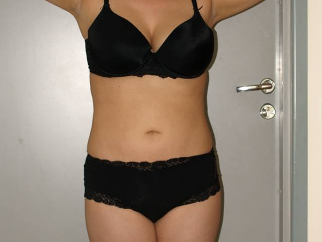 Liposuction patient after the procedure.