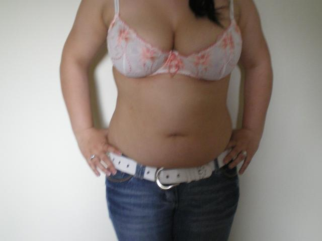 Liposuction patient before procedure