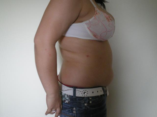 Liposuction patient before procedure, side view.