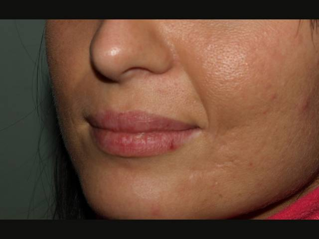 Patient after scar correction.