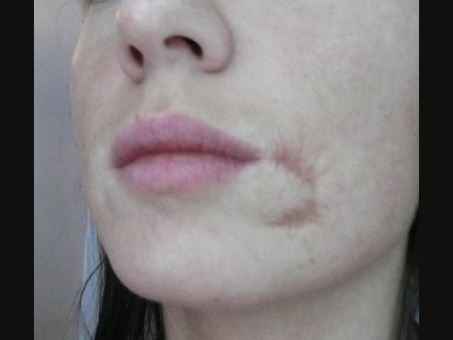 Patient before scar correction.