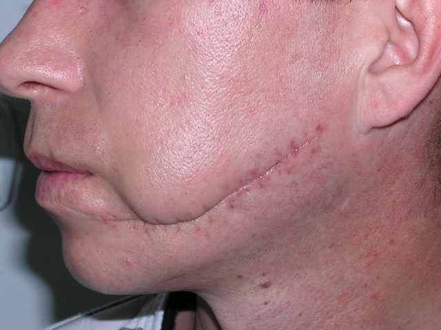 Before scar correction.